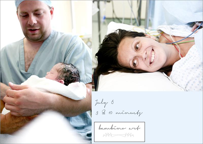 c-section_birth_photography_uk_birth_photographers_london